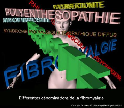 Differentes denominations de la fibromyalgie